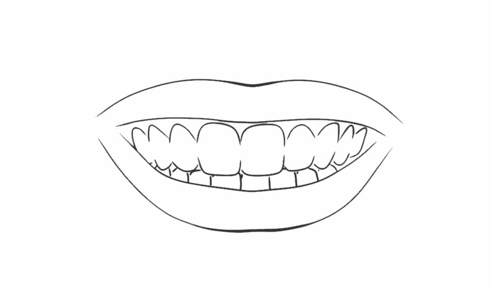 tannblekingspenn-steg-4